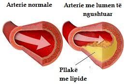 Ilustrim i aterosklerozës (Përshtatur nga Wikipedia)